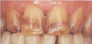 tetraciclina dientes